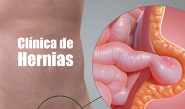 CLINICA HERNIAS QUITO